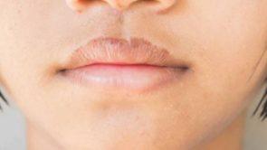 Causes of dark lips in hindi : होंठों का रंग काला पड़ने के कारण।